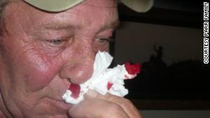 bob parr nosebleed